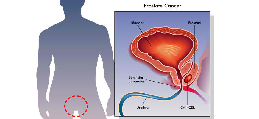 To Find Treatment and Cure for Prostate Cancer by Free Radical Framework of Disease