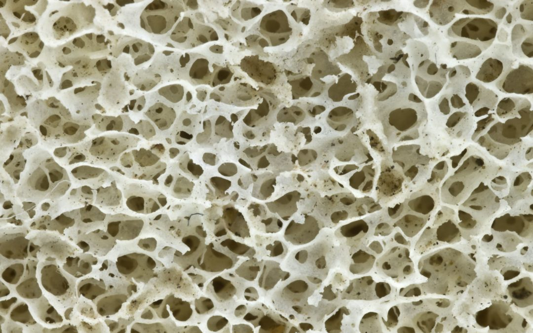 3D-printed bones could replace bone donations in treating landmine victims