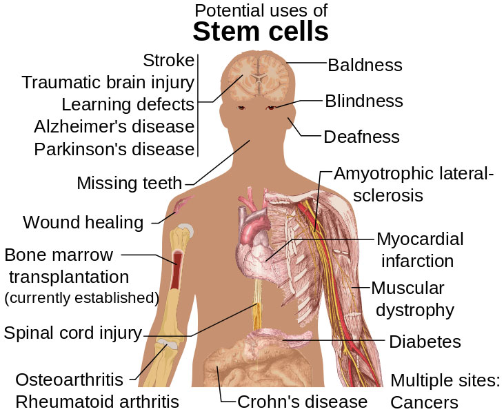 stemcell-application